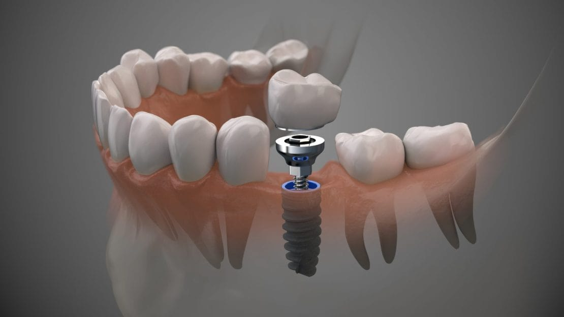 All About Guided Dental Implant Placement